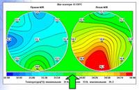 Поле температур-зеленый цвет, соответствует средней температуре обследуемого органа